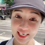 <トレンドブログ>日本人タレントのサユリ、前歯のラミネートが外れるも愉快に乗り越える!?